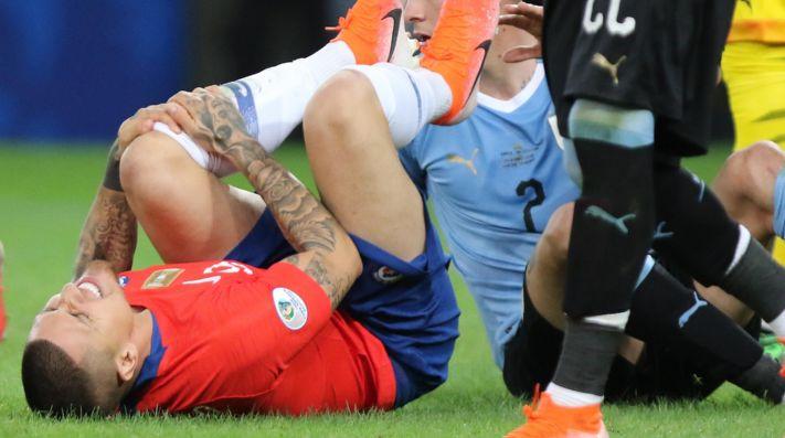 Nueva lesión: Castillo deberá ser operado y será baja en América