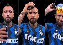 La escena de Arturo Vidal dejó con temblores a los fanáticos del King. ¿Debutará sin su mohicano en el Inter de Milán?