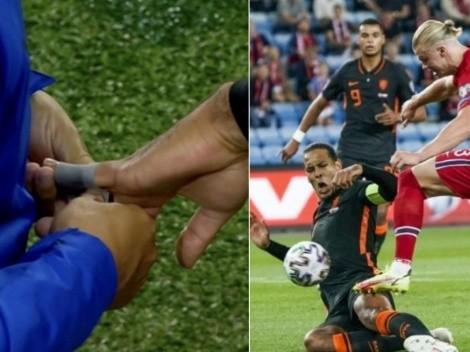 """Terrible duelo entre Haaland y Van Dijk: """"Le fracturé un dedo"""""""